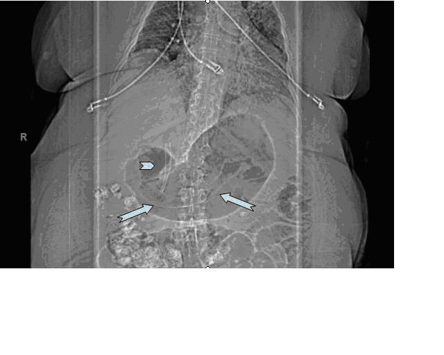 Figure: Scout film demonstrating the successful placement of self expandable biliary (arrowhead) and enteric metal stents (arrows) are shown in this obese patinet